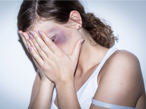 Mutilated women cover her bruised face with shame